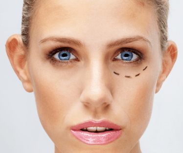 Mercury Legal backs safe cosmetic surgery campaign